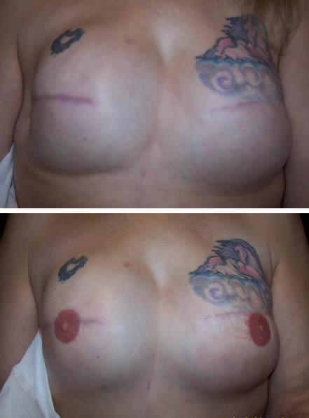 3D Nipple Tattoo Client