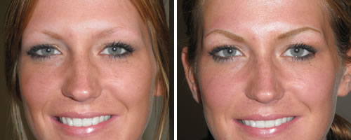 eyebrows-before-after - Elegant Permanent Cosmetics